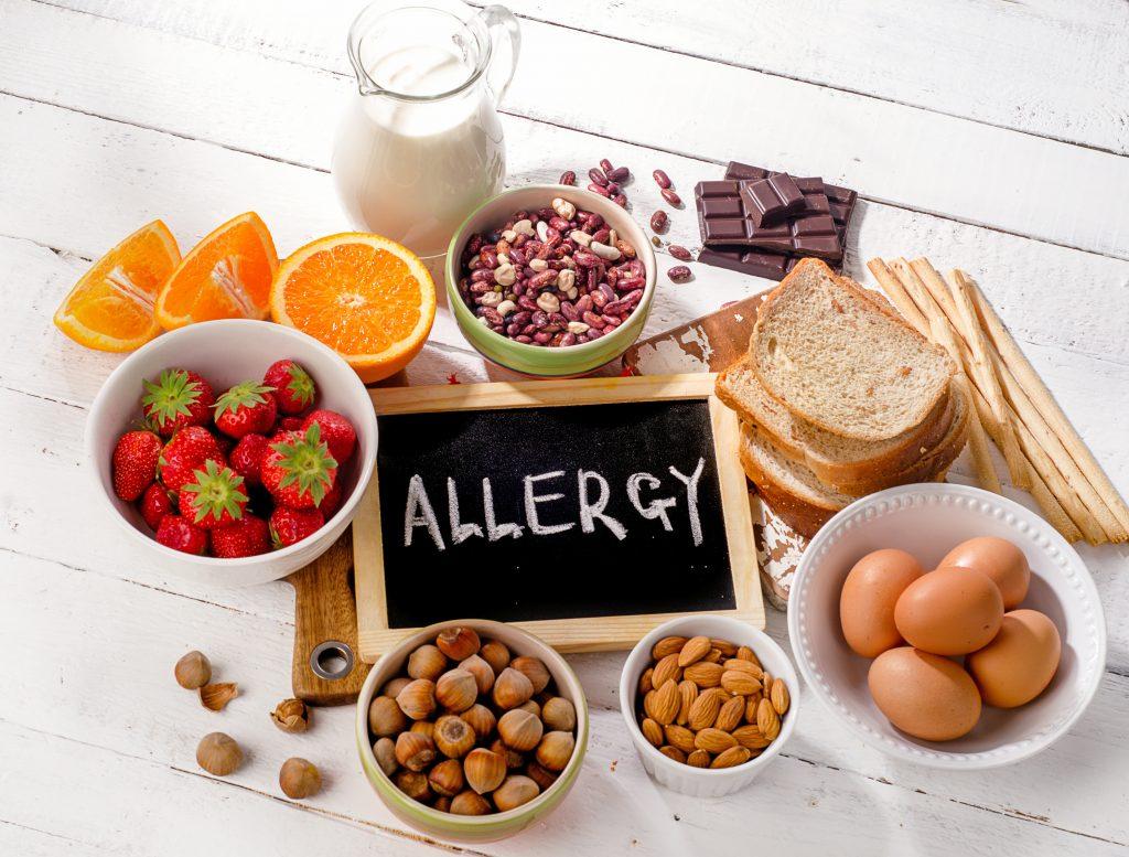 Natasha's Law - Allergic food image